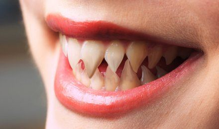 how to make your fangs longer